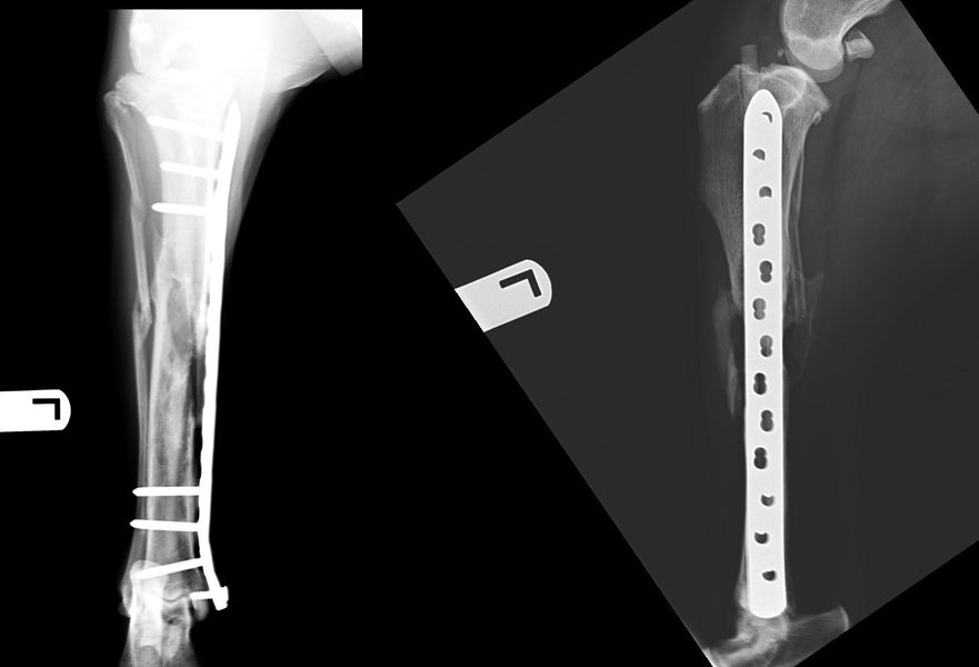 16 week post op radiographic update in a complex tibial fracture repaired with plate and IMPeek rod