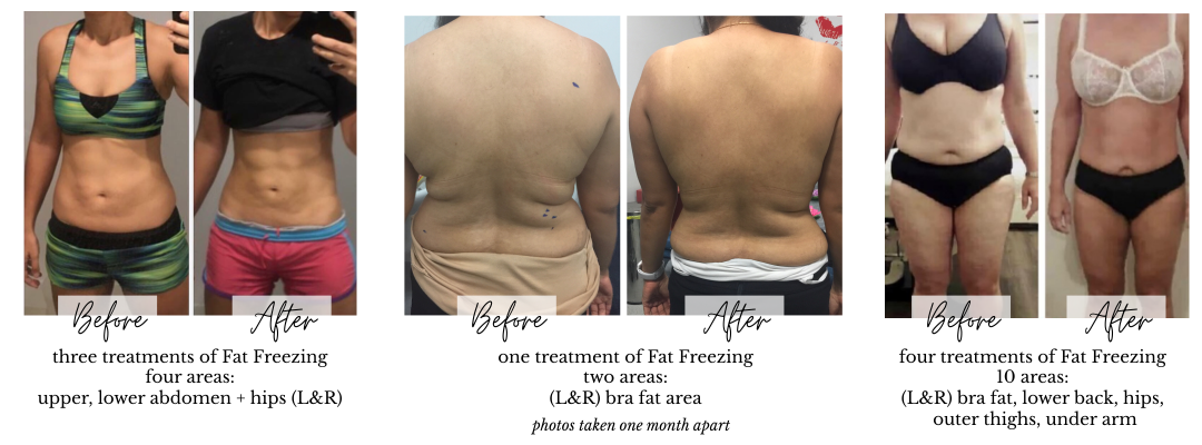 Before and Afters Miami Kiss Cryolipolysis