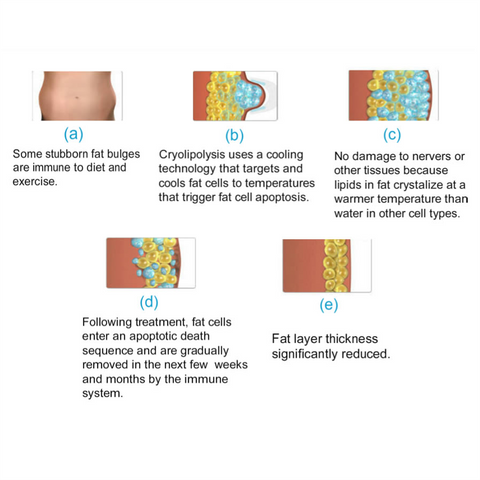 Process of Cryolipolysis