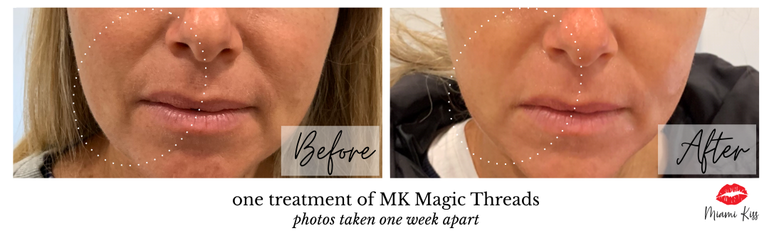 Miami Kiss Magic Threads - face definition treatment before and after one treatment