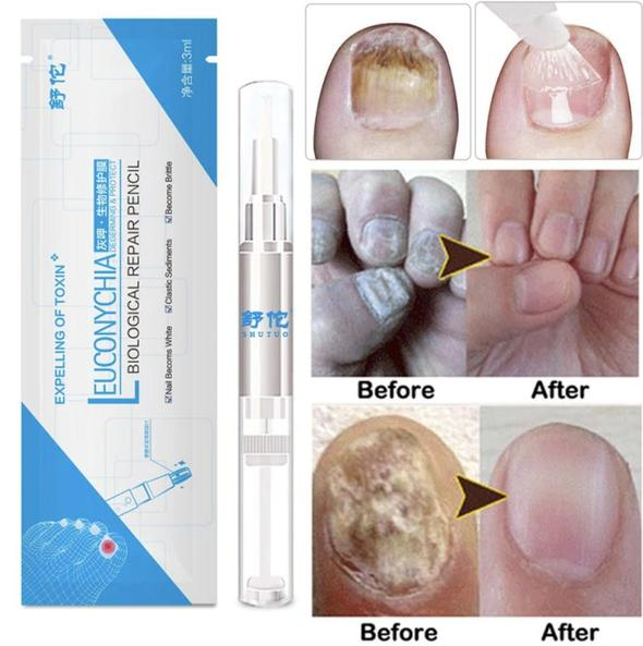 Biological Repair Nail Fungus Treatment Pen