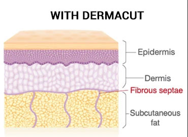 Without Dermacut