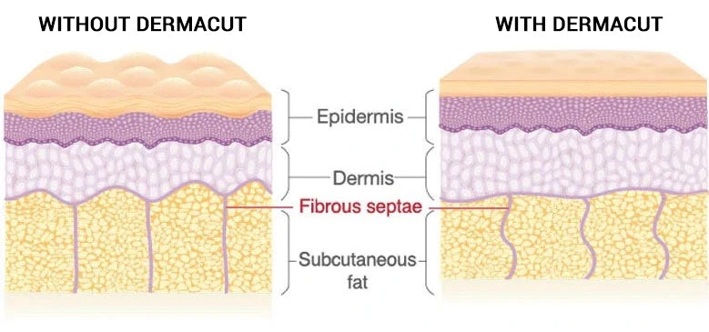 With & Without Dermacut
