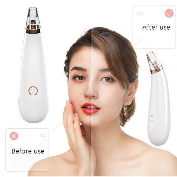 Blackhead Skin Care Discounted Price Face Deep Pore Acne Pimple Removal Vacuum Suction Facial Diamond Beauty Tool