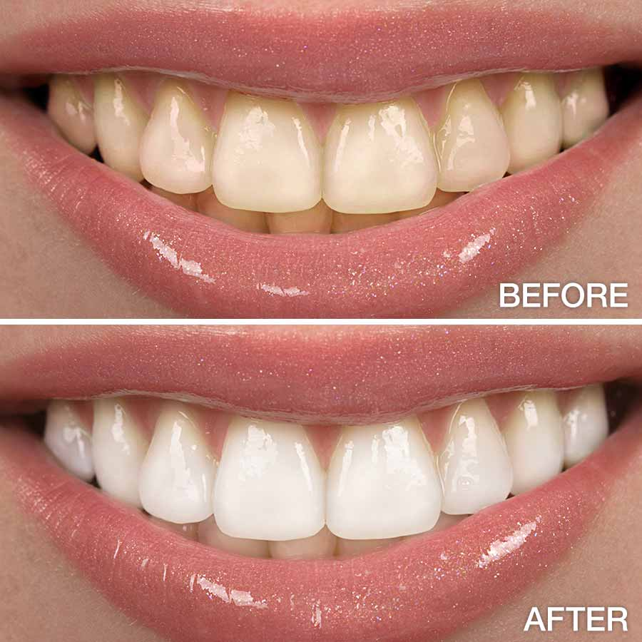 Carbamide Peroxide Teeth Whitening Gel 0.1%,6%,16%,22%,35%,44%CP  / Free Shipping