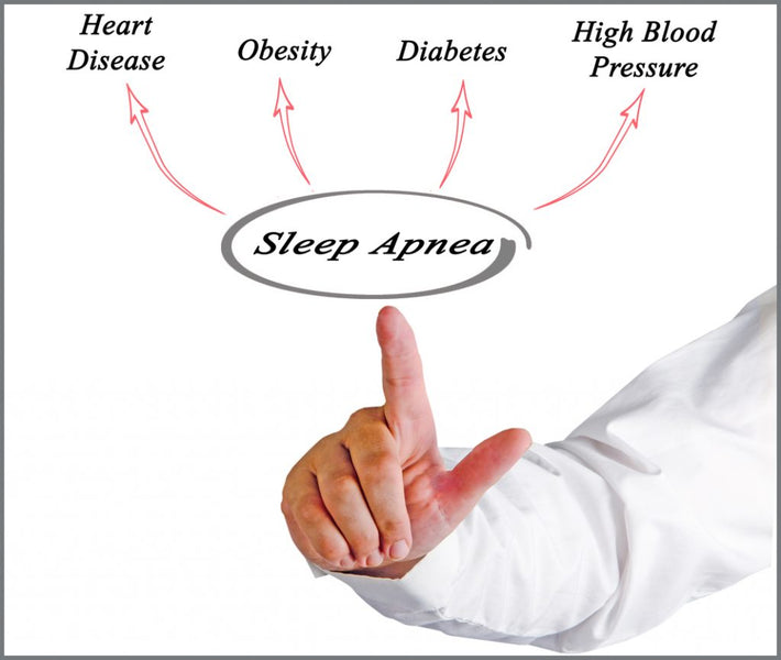 Untreated Sleep Apnoea Could Cut 10 To 20 Years Off Your Life