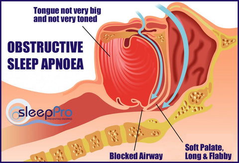 over one third of the people who snore are believed to have obstructive  sleep apnoea (osa)