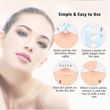 Load image into Gallery viewer, Acne Pimple Skin Tag Master Patch (2pcs)