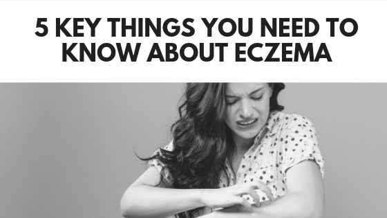 5 Key Things You Need to Know About Eczema