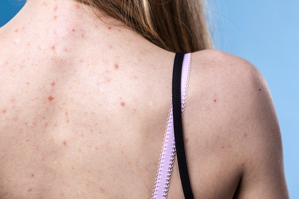 Healthy Skin Part 1: Dealing with Adult Acne – Smarter Nutrition