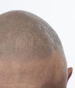 Scalp Micropigmentation Seminar