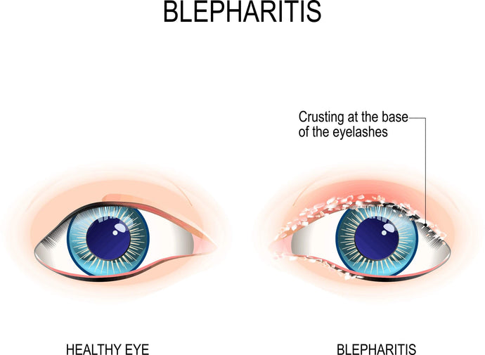 Difference between Dry Eyes, Blepharitis and MGD - Get Solutions