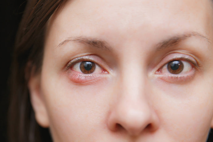 Symptoms of Stye and Chalazion