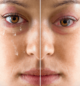 Difference between Dry Eyes or Tear Dysfunction Syndrome?