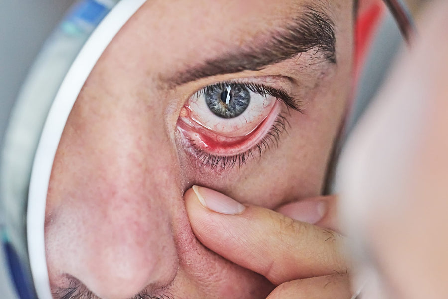 Dry Eyes and its Relationship with Vitamin A