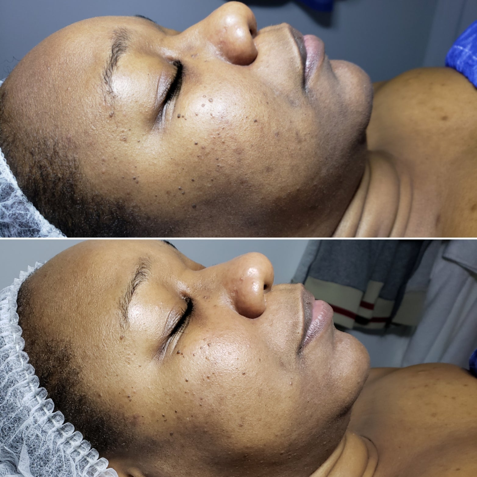 Hyperpigmentation Concerns & How to Treat
