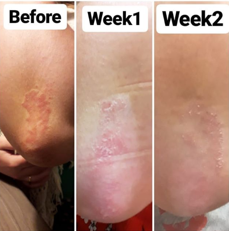 PSORIASIS TRIAL WITH CELLNUTRITION BY LINDI