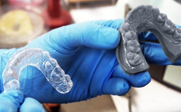 Application of 3D Printing Technology in Invisible Braces-01