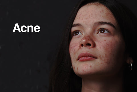 A woman's face covered in acne