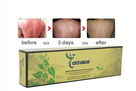 2Pcs/Lot High Quality Chinese Herbal Eczema, Psoriasis Creams Dermatitis And Eczema Pruritus Psoriasis Cezubem Eczema Ointment