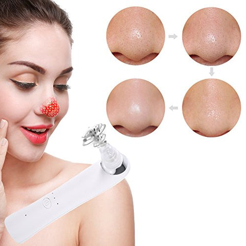 Blackhead Suction Machine, Nose Acne Remover Utilizes Vacuum Extraction Tool Skin Care Tightening Facial Beauty Salon Device Instrument (White)