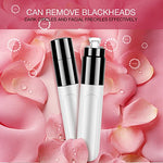 Blackhead Remover, Portable Electric Pore Cleanser Oil Controlling Blackhead Removing Skin Whitening Facial Massage Tool
