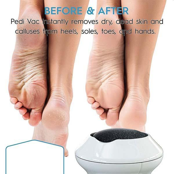 Electric Vacuum Absorption Foot Grinder
