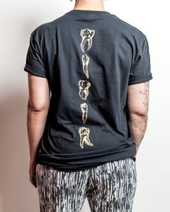 """Gold Teeth"" (Black Pocket T-Shirt)"