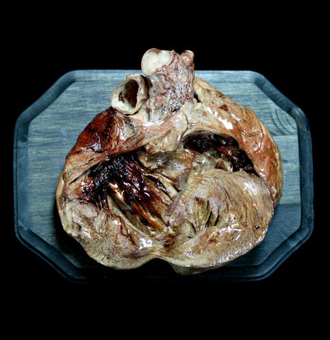 Preserved Dissected Pig Heart Wall Mount - PaxtonGate