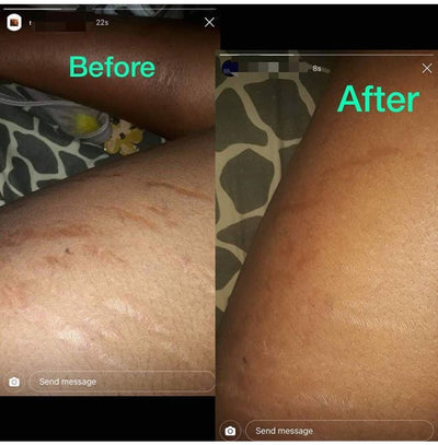 Aloe-Vera Stretch Mark Oil