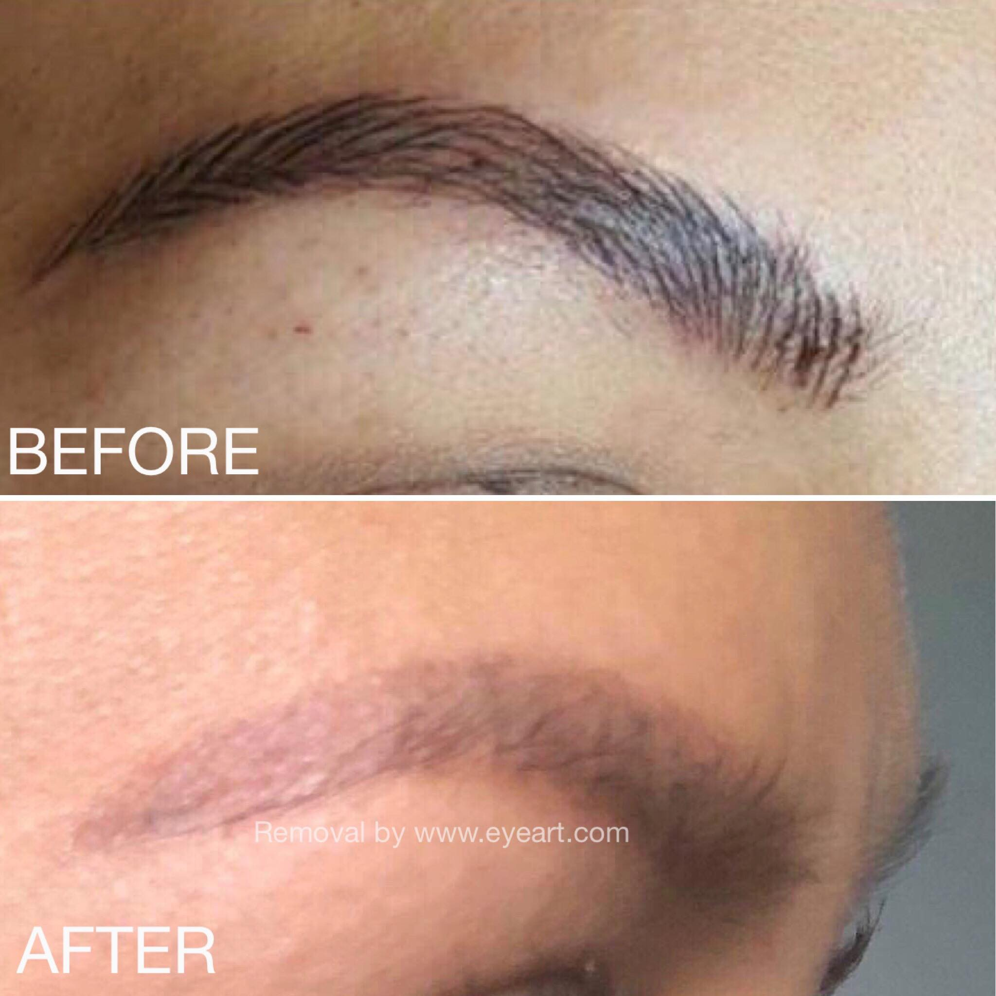 Eye Brow Tattoo Removal Before and After Photo by Eye Art Studio