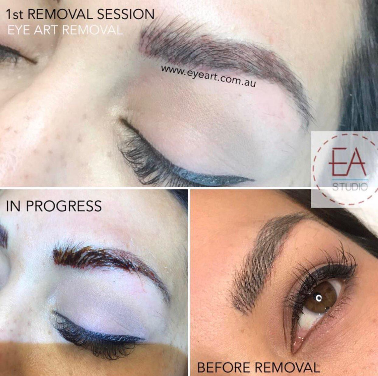 Eyebrow Tattoo Removal Melbourne | The Experts In Non-Laser Removals ...
