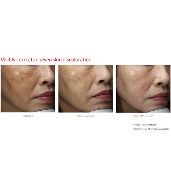 Face of a woman with uneven skin discoloration before, 4 weeks and 12 weeks after Cyspera treatment