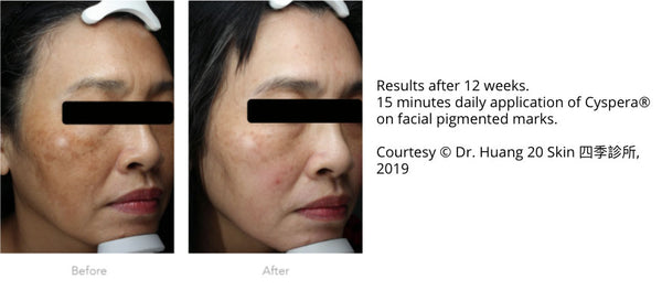 Woman before and after Cyspera®. Results after 12 weeks. 15 minutes daily application of Cyspera® on facial pigmented marks. Courtesy © Dr. Huang 20 Skin 四季診所, 2019