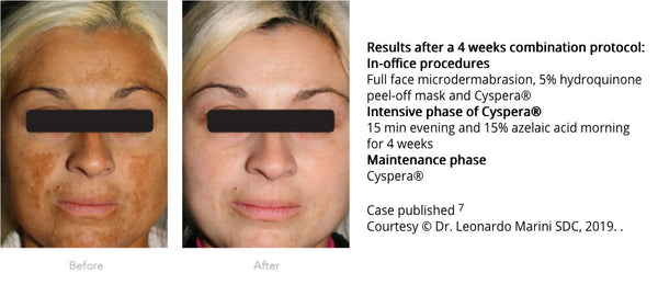 Woman before and after Cyspera®. Results after a 4 weeks combination protocol:  Full face microdermabrasion, 5% hydroquinone peel-off mask and Cyspera® Intensive phase of Cyspera® 15 min evening and 15% azelaic acid morning for 4 weeks Maintenance phase Cyspera® Case published 7 Courtesy © Dr. Leonardo Marini SDC, 2019.