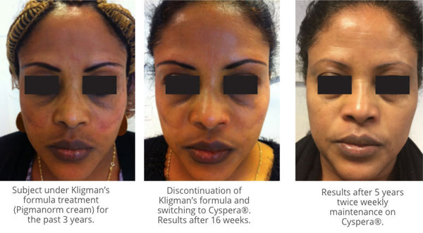 Woman before and after Cyspera®. Subject under Kligman's formula treatment (Pigmanorm cream) for the past 3 years. Discontinuation of Kligman's formula and switching to Cyspera®. Results after 16 weeks. Results after 5 years twice weekly maintenance on Cyspera®.