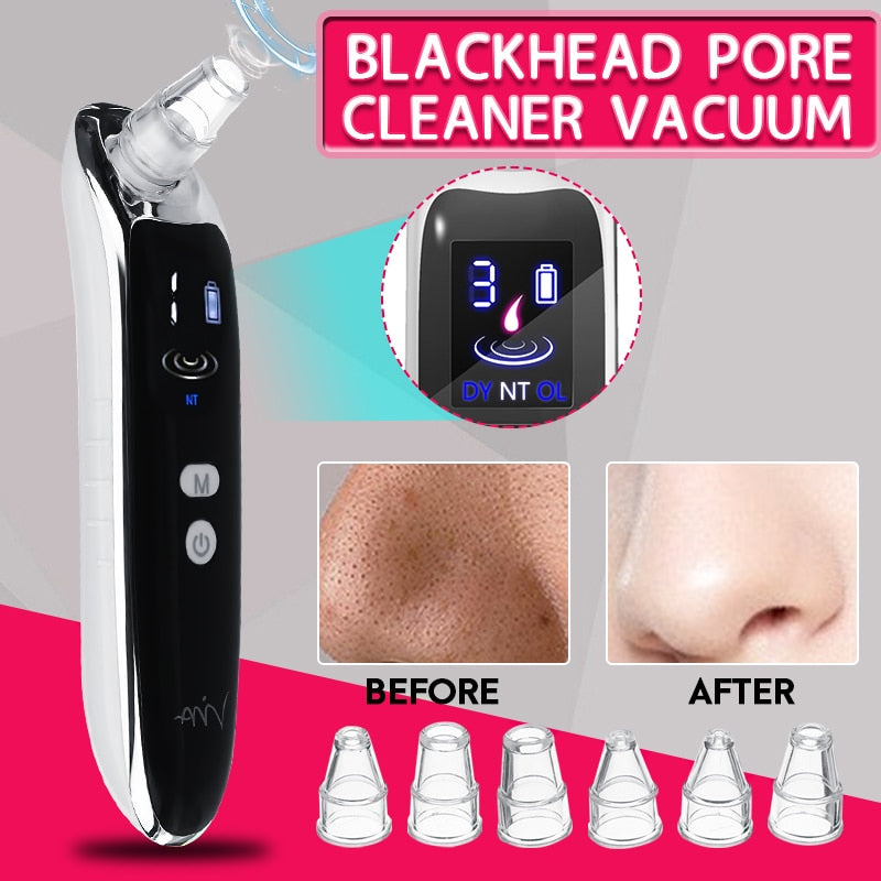 Electric Blackhead/Acne Pore Vacuum Cleaner