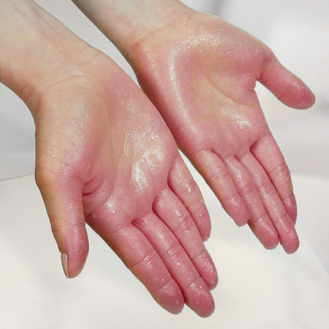 Excessive sweating of the hands