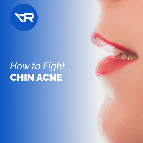 What's the Deal with Chin Acne?