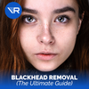 The Ultimate Guide to Blackheads Removal
