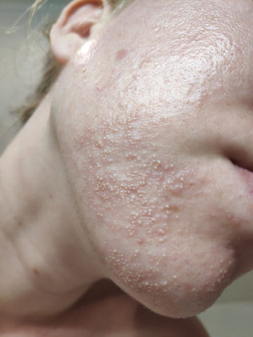 What Is Fungal Acne And How Do I Treat It Vital Reaction Molecular Hydrogen