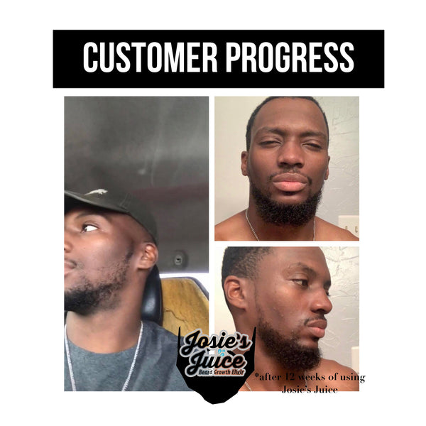 Josie's Juice: Beard Growth Elixir