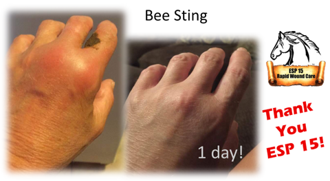 Bee sting on woman's hand. Before and after having ESP-15 applied for 24 hours.