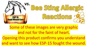 ESP-15 Vs... Bee Stings (Graphic Photos)