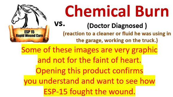 ESP-15 Vs... Chemical Burn on My Son's Arm ( Graphic Photos)