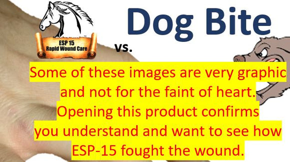 ESP-15 Vs... Dog Bite ( Graphic Photos )