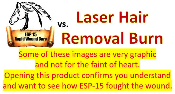 ESP-15 Vs... Laser Hair Removal Burn (Graphic Photos)