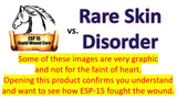 ESP-15 Vs... Rare Skin Disorder (Graphic Photos)