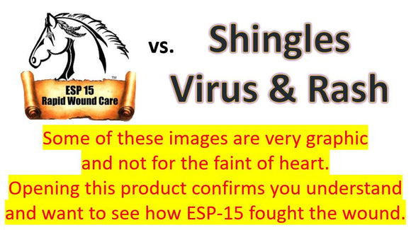 Shingles Relief Vs... Shingles Virus & Rash (Graphic Photos)