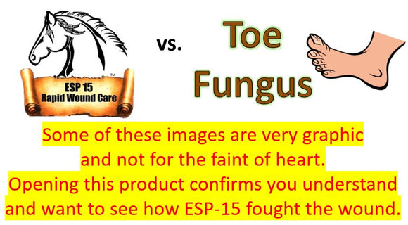 ESP-15 Vs... Toe Fungus (Graphic Photos)